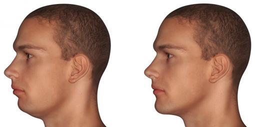 Avant Après chirurgie Maxillo-Faciale le menton est mis en avant